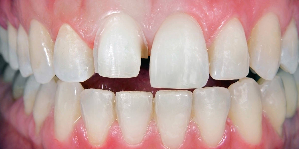 bästa online AliExpress uttag online Know The Teeth Gap Treatment Cost And Methods In Markham