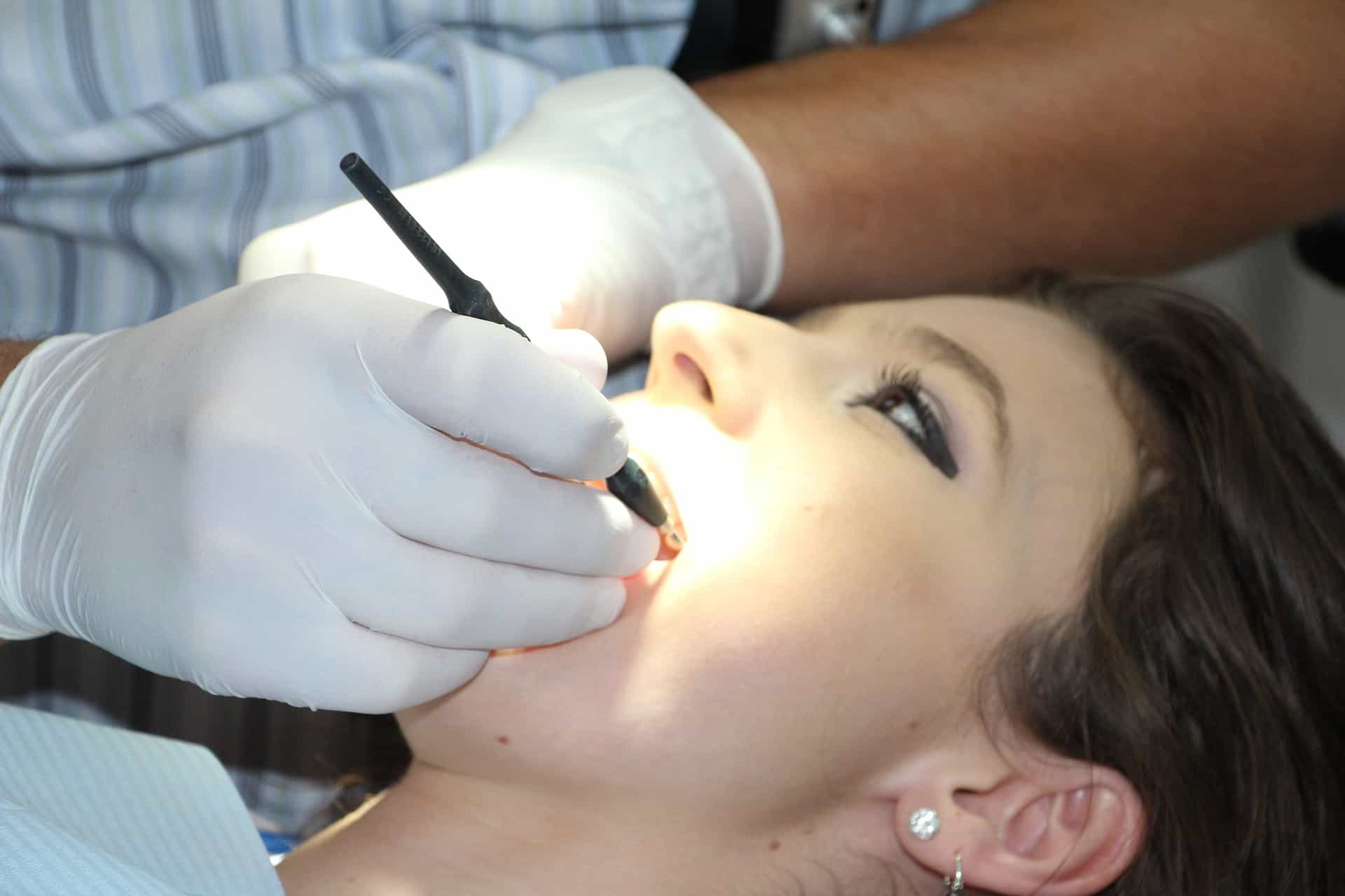 Top Five Reasons Why A Tooth Extraction Is Necessary - Forestbrook Dental - Markham Dentist