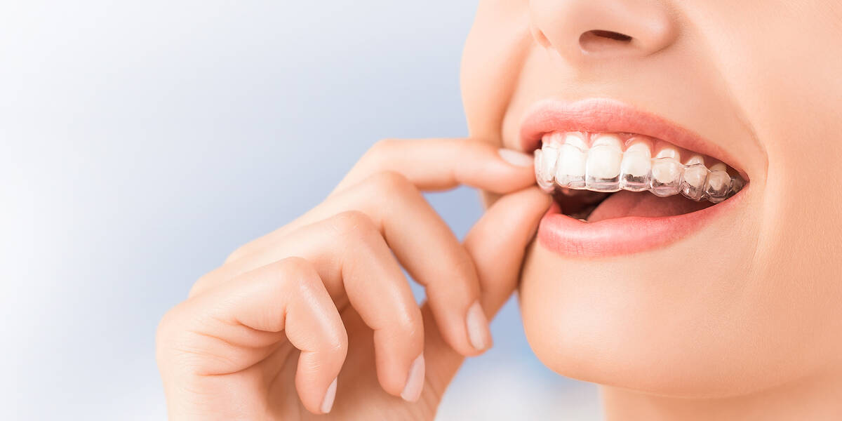 Invisalign clear aligners - Forestbrook Dental - Family and Cosmetic Dentistry - Markham Dentist